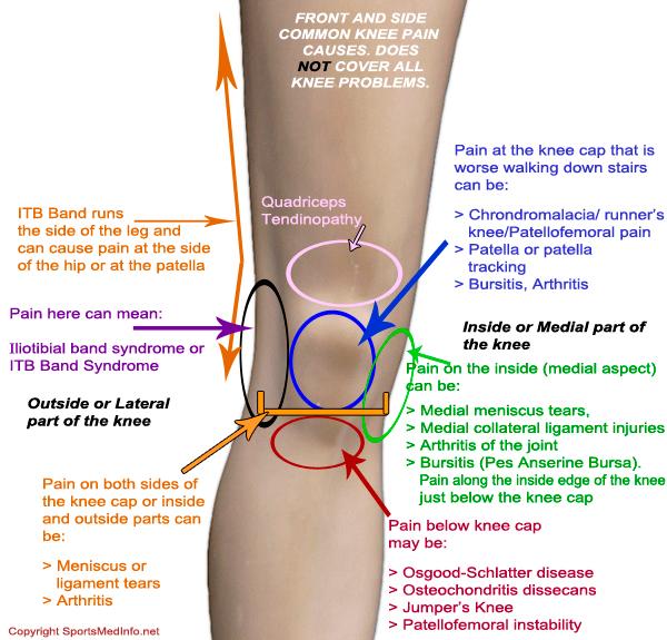 Knee pain prayway global prayer community for Exterior knee pain